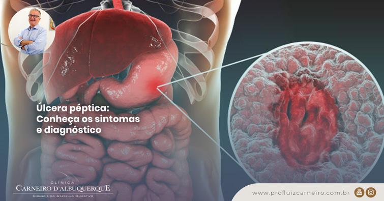 A imagem mostra uma ilustração do fígado, intestino e estômago de um humano. E há uma seta com zoom no estômago mostrando uma ferida machucada.
