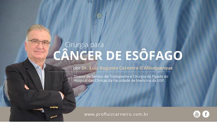 Cirurgia para Câncer de Esôfago | Por Prof Luiz Carneiro CRM 22761 | Diretor do serviço de transplante e cirurgia do fígado do hospital das clínicas da faculdade de medicina da USP.