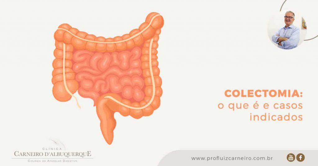 Ao fundo da imagem, há um intestino em laranja.
