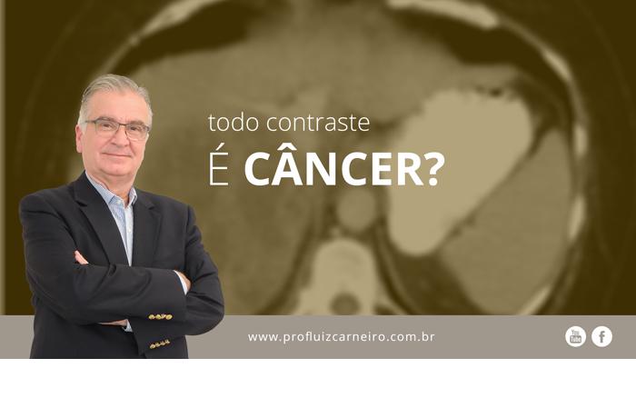 Todo contraste é Câncer? - Por Prof. Dr. Luiz Carneiro