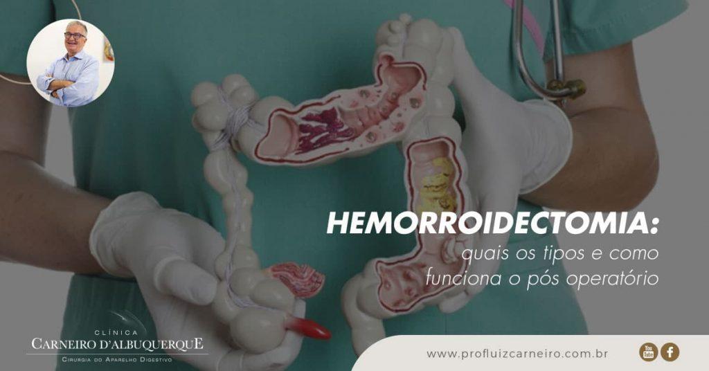Ao fundo da imagem, há um doutor segurando o músculo com hemorroida.