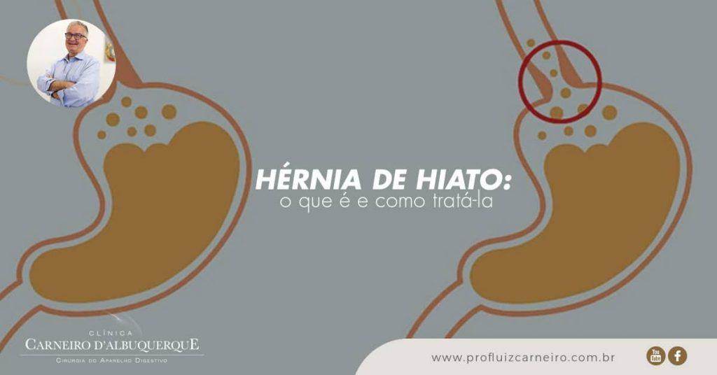 Ao fundo da imagem, há a representação da hérnia de hiato.