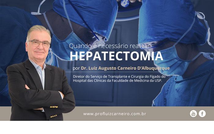 Quando é necessário realizar a hepatectomia? | Por Prof Luiz Carneiro CRM 22761 | Diretor do serviço de transplante e cirurgia do fígado do hospital das clínicas da faculdade de medicina da USP.