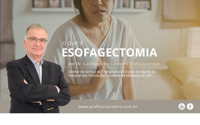 Esofagectomia: o que é?   Por Prof Luiz Carneiro CRM 22761   Diretor do serviço de transplante e cirurgia do fígado do hospital das clínicas da faculdade de medicina da USP.