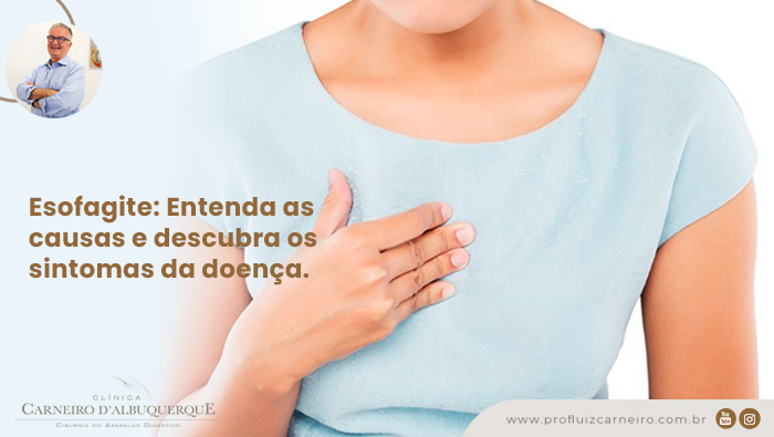 Esofagite   Por Prof Luiz Carneiro CRM 22761   Diretor do serviço de transplante e cirurgia do fígado do hospital das clínicas da faculdade de medicina da USP.