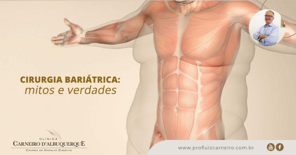 Cirurgia bariátrica: mitos e verdades | Por Prof Luiz Carneiro CRM 22761 | Diretor do serviço de transplante e cirurgia do fígado do hospital das clínicas da faculdade de medicina da USP.